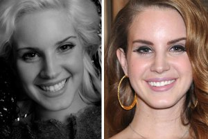 Lana-Del-Rey-Before-And-After-NoseLips-Plastic-Surgery-Job-2